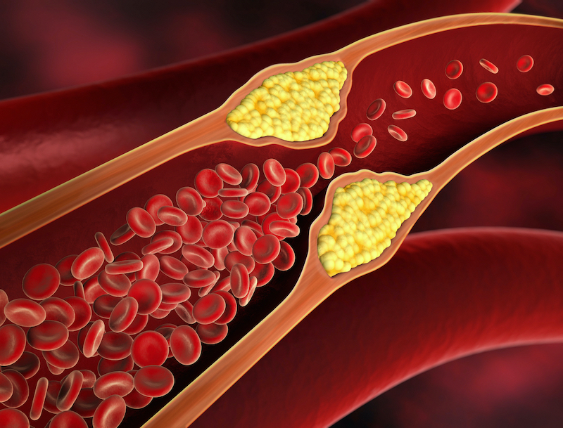Cholesterol builds up in the arteries and causes heart disease