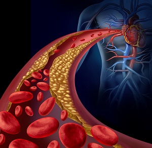 Cholesterol can cause a narrowing of the arteries due to plaque buildup.