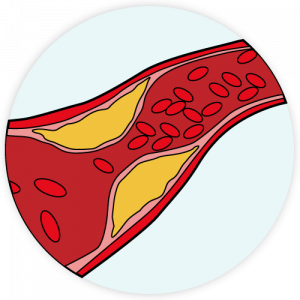 Diagram of an artery showing plaque buildup